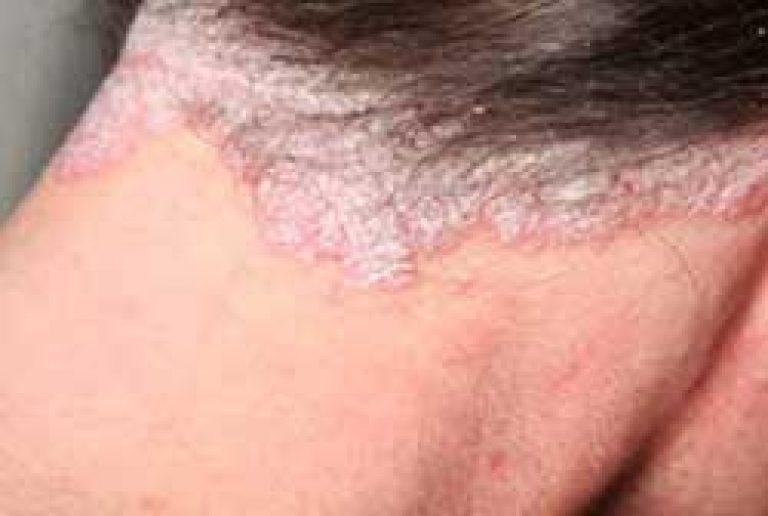 miért jelennek meg foltok az arcon vörösen valódi pikkelysömör kezelése