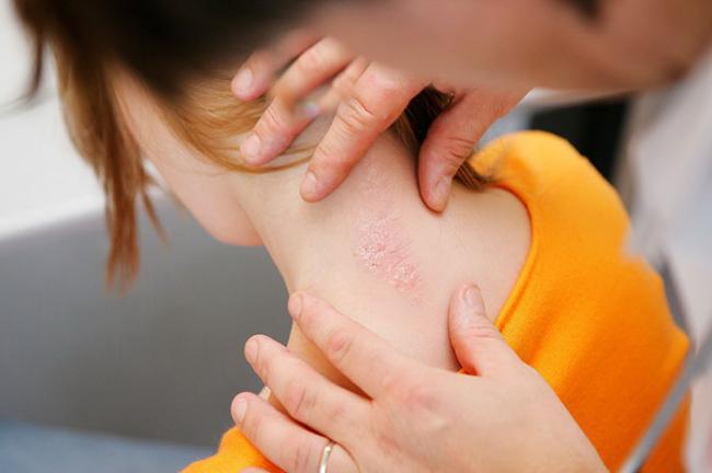 Thai krém pikkelysömörhöz a testen vörös foltok a kéz duzzanata