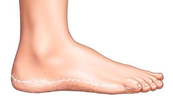 a lábán kerek piros folt hámlik