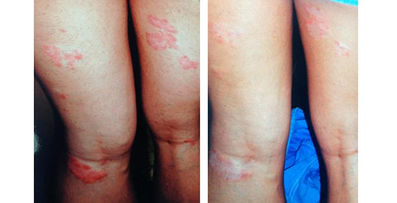palmar pikkelysömör típusú barbara kezelés