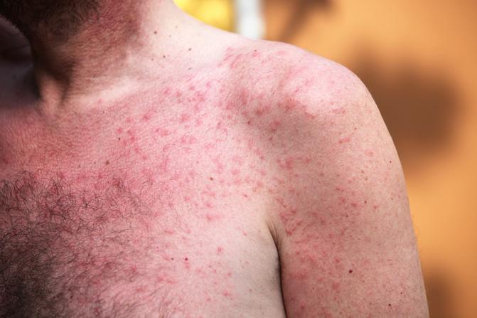 bőrrepedések a kezeken és vörös foltok jelennek meg