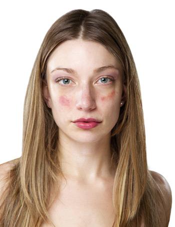 vörös foltok viszketnek és pikkelyesek az arcon pikkelysömör kezelése a-vitaminnal