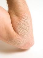 Az alternatív gyógyászat gyógyíthatja a pikkelysömör pikkelysömör fotó okozza a tünetek kezelését