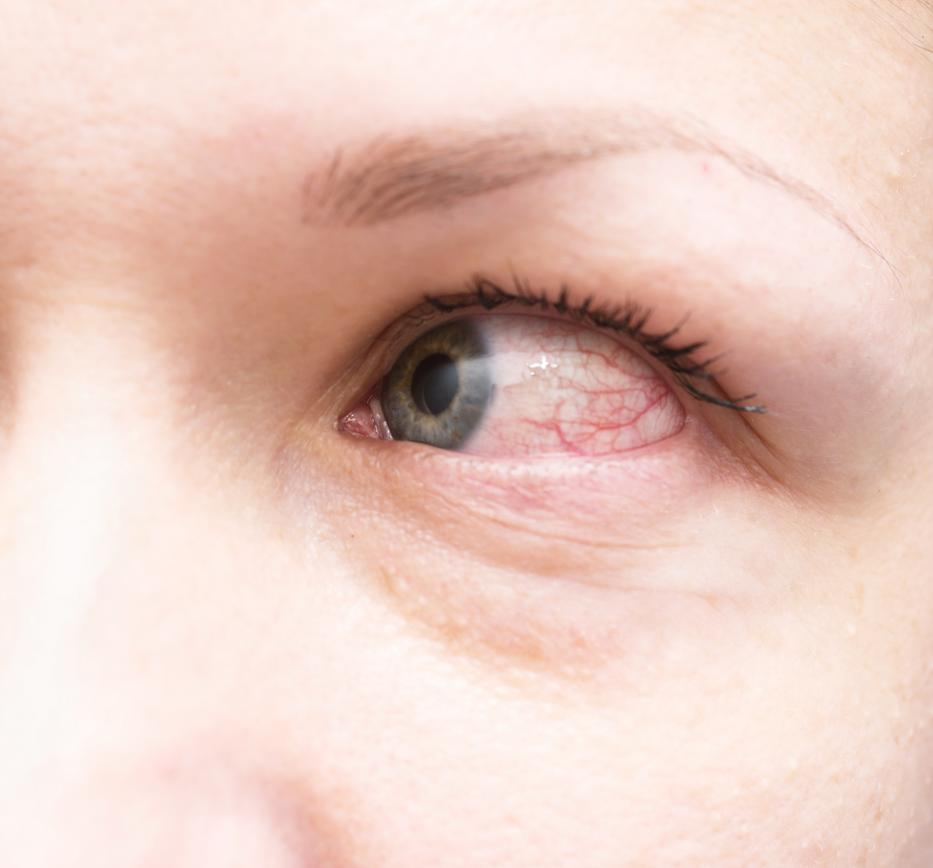 a látószerv gyulladásos betegségei