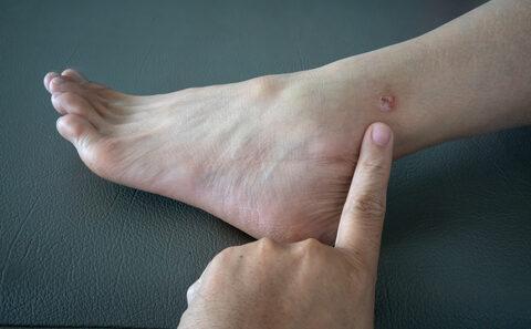 vörös gennyes foltok a lábakon modern pikkelysömör kezelsi rendek