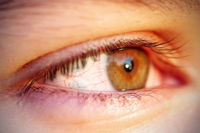 vörös szem jelenik meg a szemhéjon és viszket