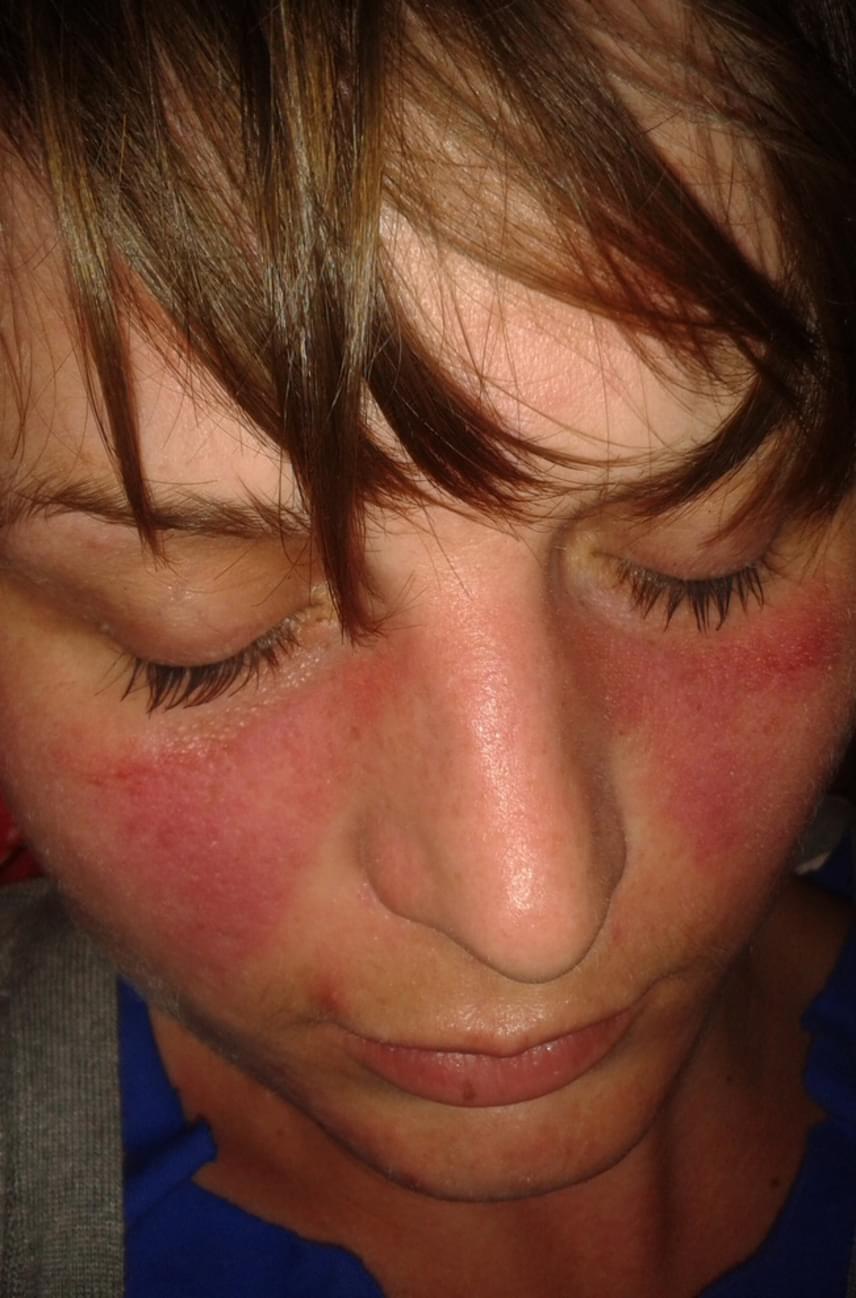 reggel arc vörös foltokkal)