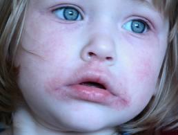 vörös foltok a száj kezelés körül hogyan lehet pikkelysömör gyógyítani koplalással