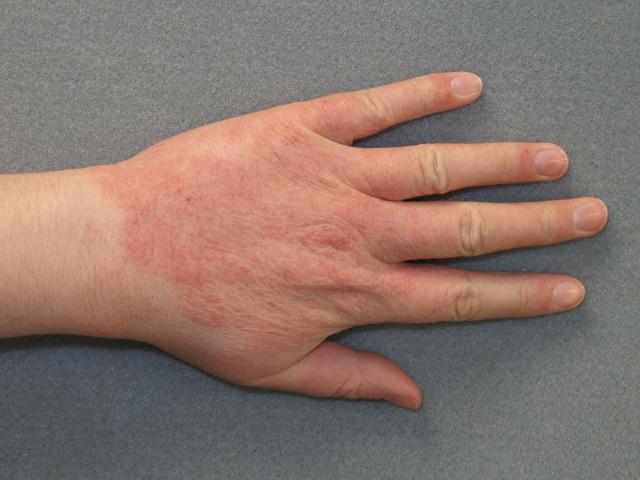 vörös folt a kezén allergia hogyan lehet eltávolítani a pikkelysömör könyökét