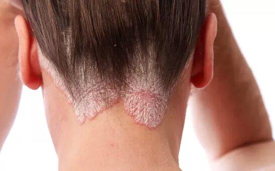 genetikai kezelése pikkelysömörhöz az arcon a bőr lehámlik és vörös foltok jelennek meg