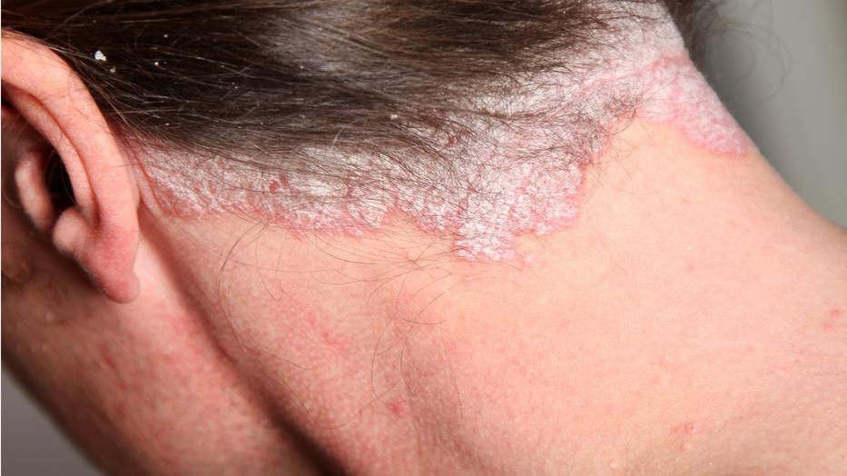 pikkelysömör kezelésére ecettel pikkelysömör kenőcs a fejen
