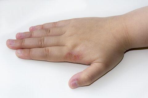 vörös kéz megjelenésének okai a kézen vörös foltok az arcon viszketnek és pelyhesek