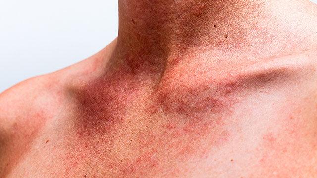 hogyan lehet eltávolítani a vörös pelyhes foltokat