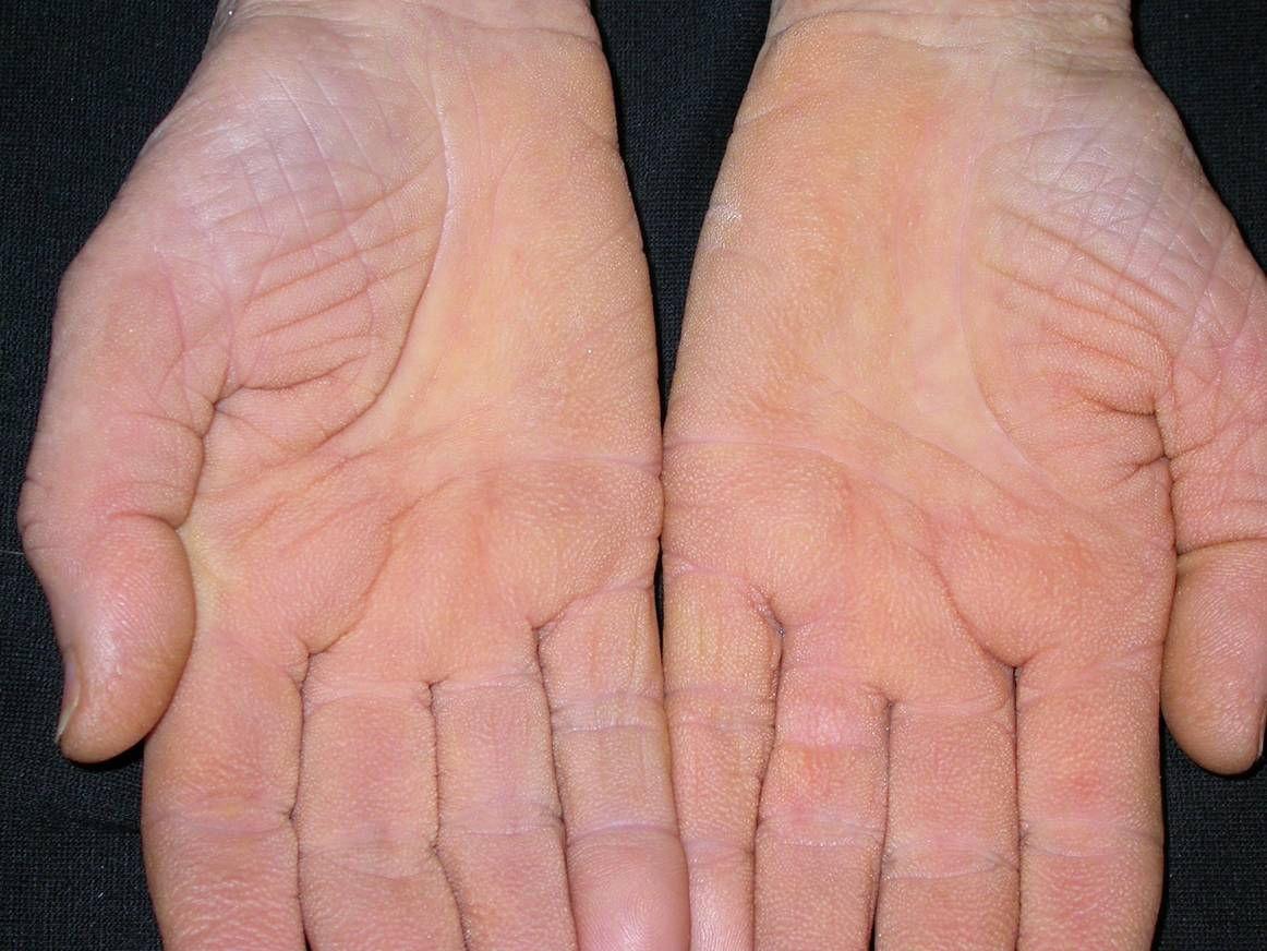 vörös pikkelyes foltok az ujjak között