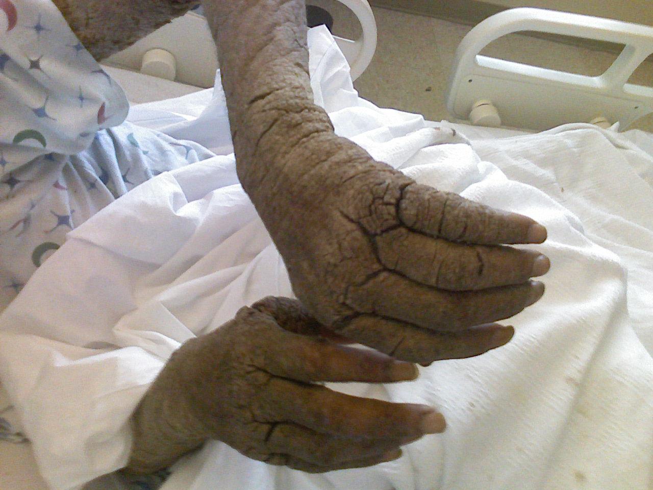 eszközök s a pikkelysmr kezelsre nagymama pikkelysömör gyógyszerei