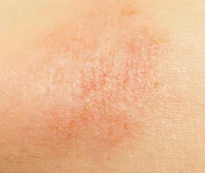 a bőrön lévő vörös foltok hámlónak és viszketőnek tűnnek múmia és pikkelysömör kezelése