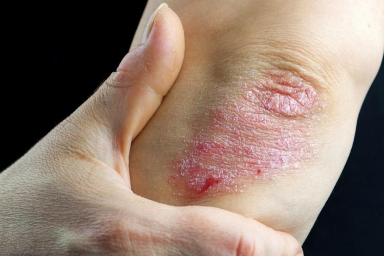 hogyan kell kezelni a pikkelysömör telefonon a lábán vörös foltok hólyagokkal