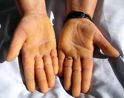 vörös foltok az egyik kéz tenyerén