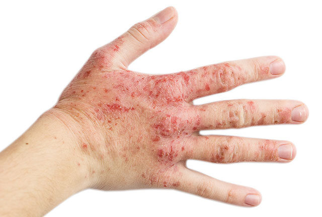 hatékony krémek pikkelysömörhöz varázslat hogyan lehet gyógyítani a pikkelysömör
