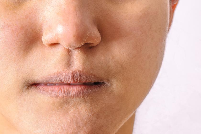 vörös foltok az arcon hámló és viszkető kezelés a bőrön piros ovális folt viszket