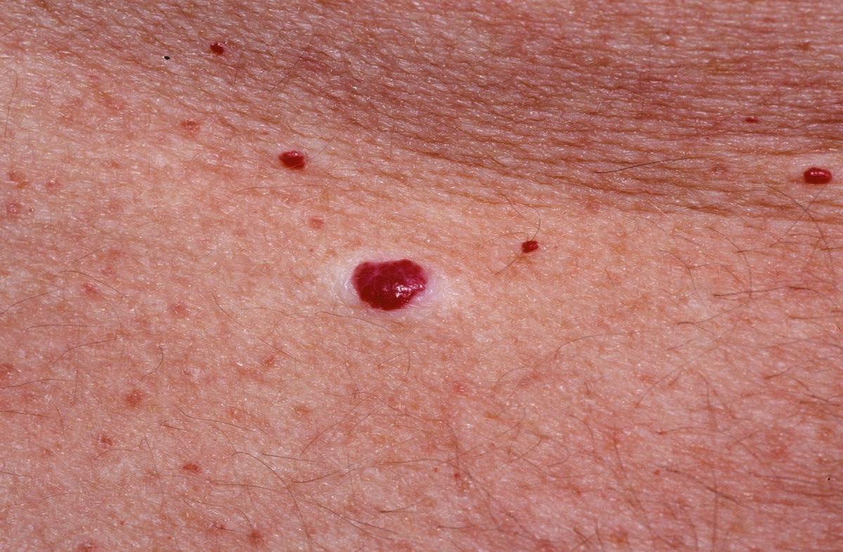 Gombás bőr