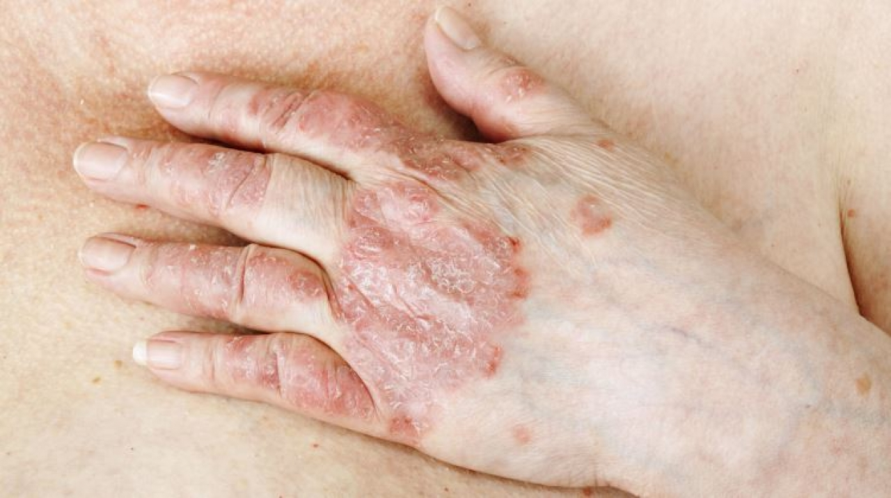 psoriasis can transfer to another person psoriasis translation bangla