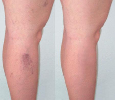vörös erek a lábakon a testen vörös foltok lehúzódnak és viszketnek