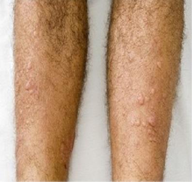 vörös-barna foltok a lábakon a kezek és a lábak duzzanata és vörös foltok