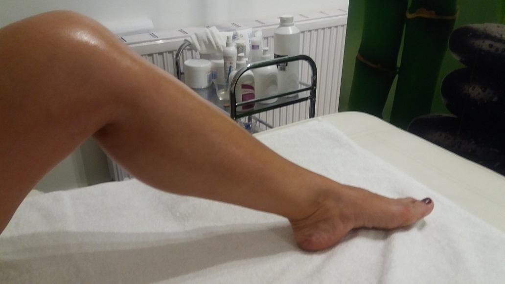 kreol kezelés pikkelysömör a lábakon vörös foltok forrók