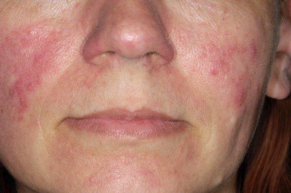 kiütések az arcon vörös foltok formájában viszkető felnőtt fotókon