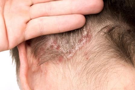 hatékony módszer a pikkelysömör kezelésére a fején)
