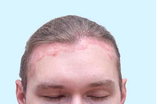 hogyan kell kezelni a pikkelysmr hajhulls)