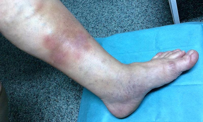 élénkvörös foltok az alsó lábszáron vörös folt van az arcon, és fáj