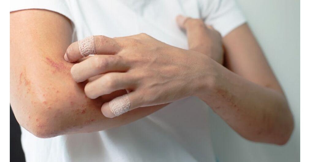 pikkelysömör kezelése kashpirovsky