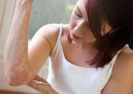aktív szén kezelések pikkelysömörhöz nyaki viszketés vörös foltok kezelése