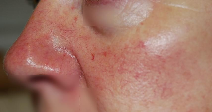 az orr körüli arcon vörös foltok mi ez
