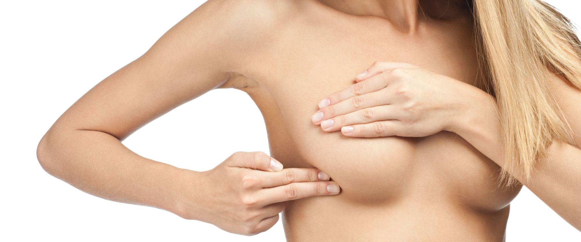 vörös foltok a karon mastectomia után