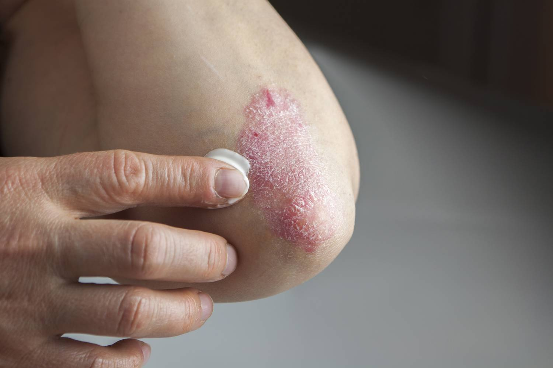 kenőcs pikkelysömör cinocap hogyan lehet megszabadulni a vörös foltoktól az arc kopása után