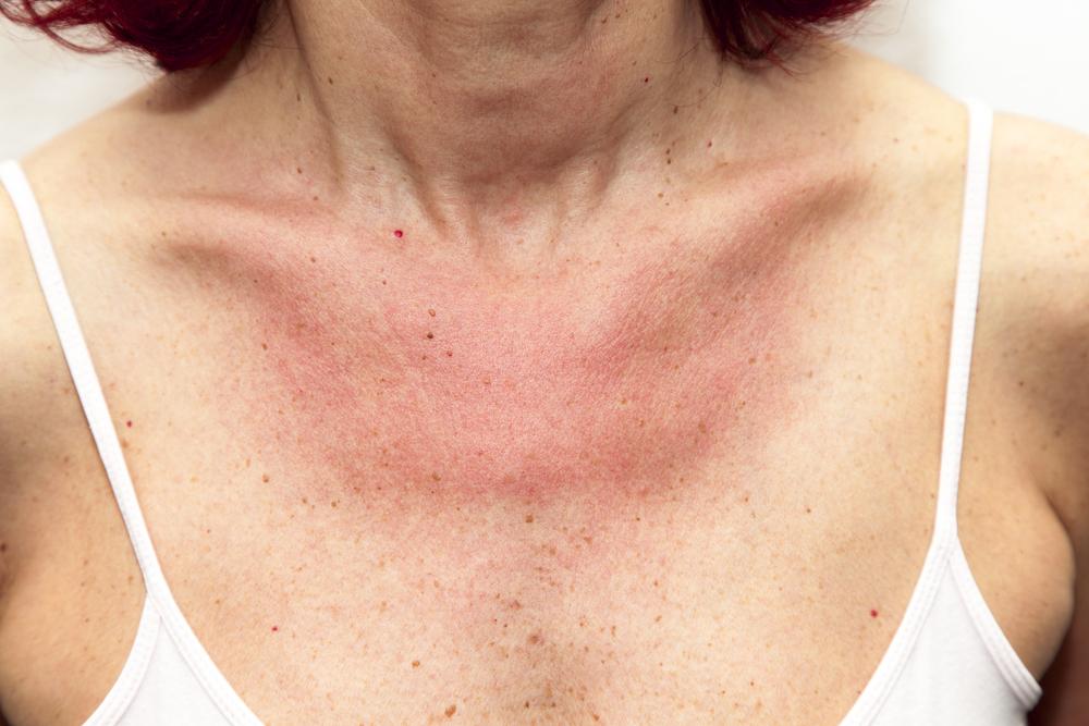 mit jelent pikkelysömörrel mosni vörös foltok az arcon pattanások formájában