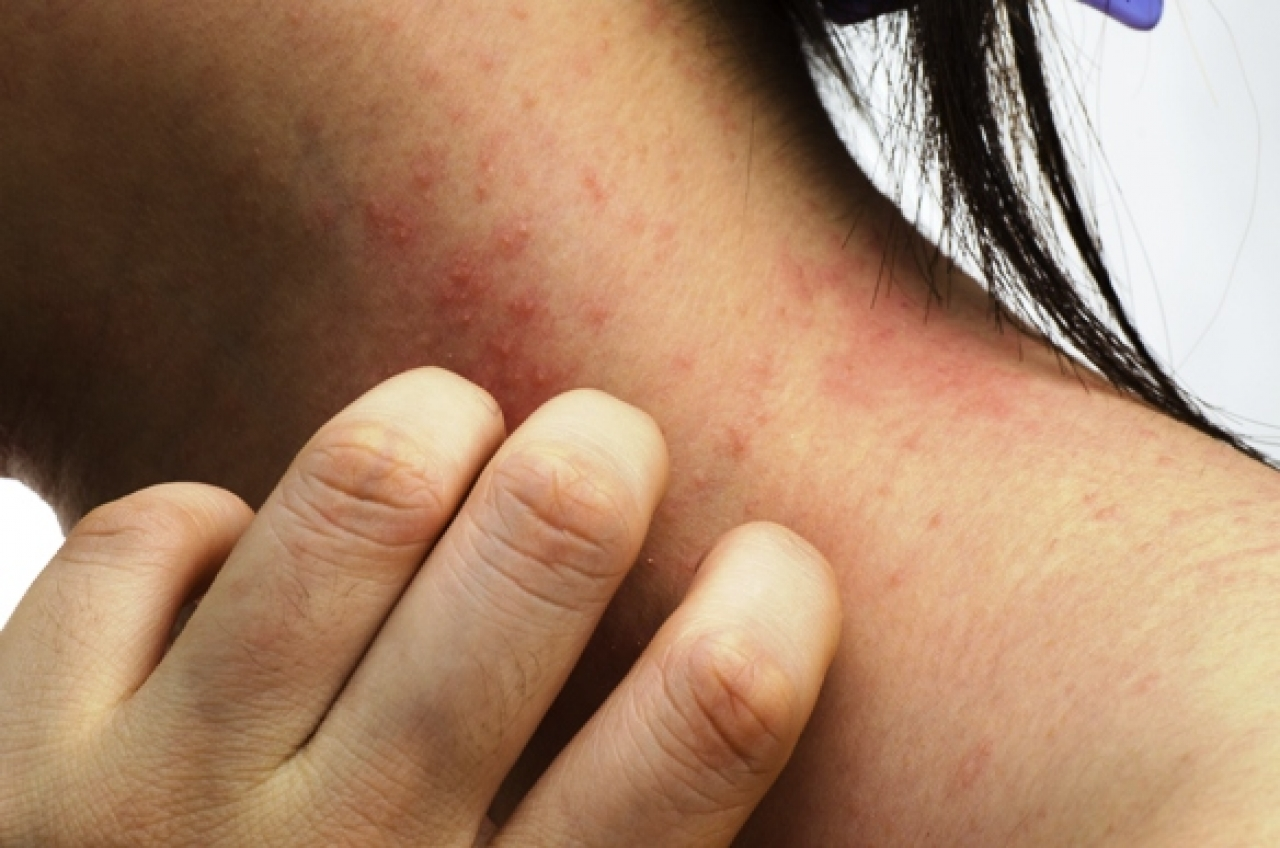 plaque psoriasis what are the symptoms