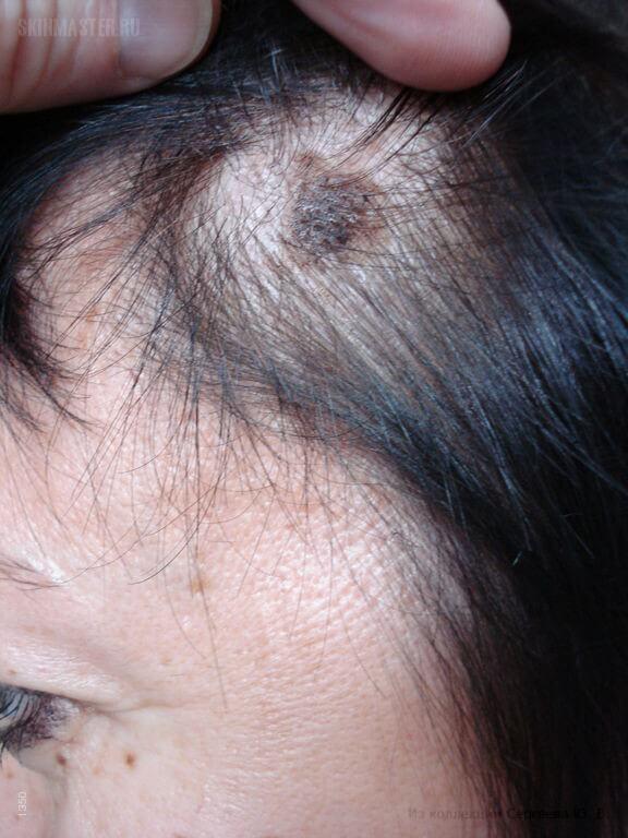 a fejbőrön vörös foltok hámozódnak mi ez hogyan kezelik a pikkelysmr Amerikban