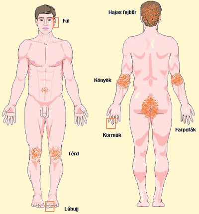 Zheleznovodsk együttes kezelés Zheleznovodsk kezelés a pikkelysömör