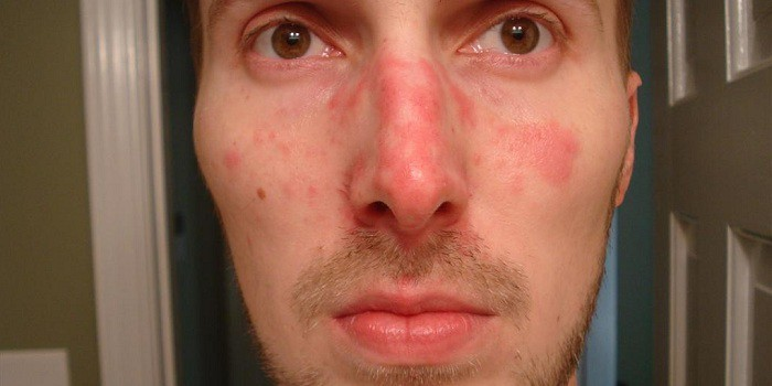 vörös foltok az arcon faggyal