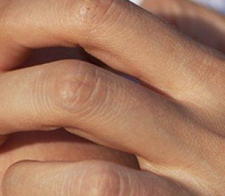 Atópiás dermatitisz - Dr. Siklos Krisztina