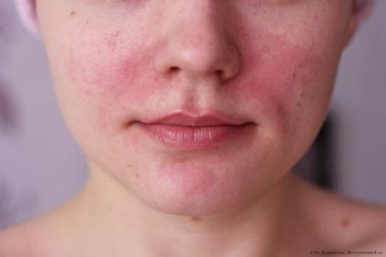 vörös foltok az arcon a portól viaszkrém pikkelysömörhöz