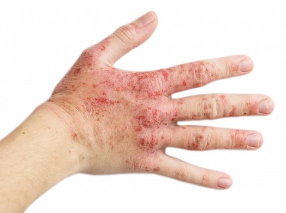 A Zorka krém kezeli a pikkelysömör köszvényét pikkelysömör fotókat okoz
