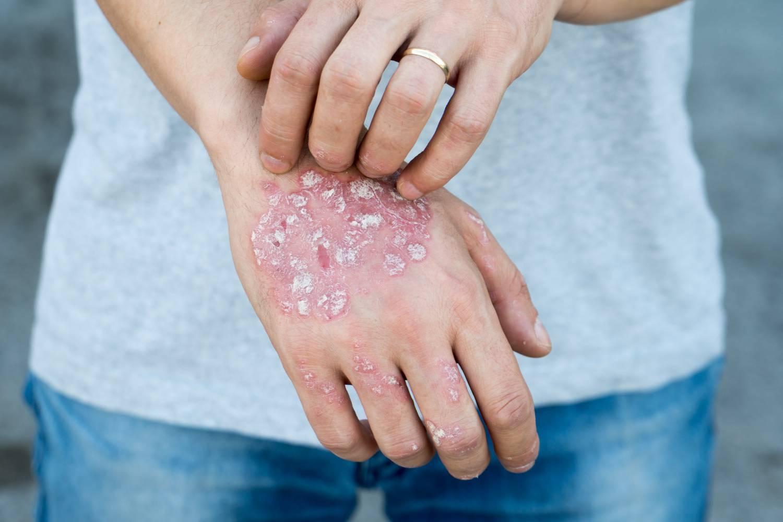 a legújabb technológiák a pikkelysömör kezelésében gygynvnyek pikkelysömörre a testen