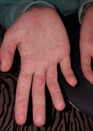 piros folt van a kéz hátán piros folt a hasi fotón