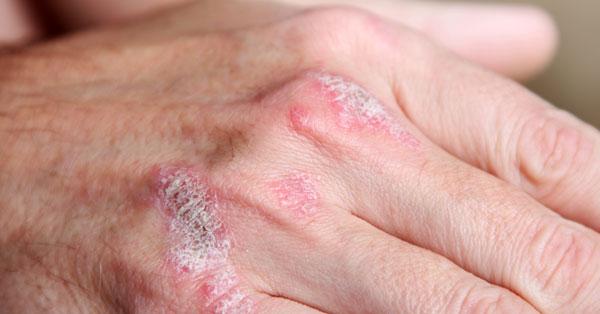 babérlevél kezeli a pikkelysömör vörös foltok hólyagokkal a testen viszket, mi ez