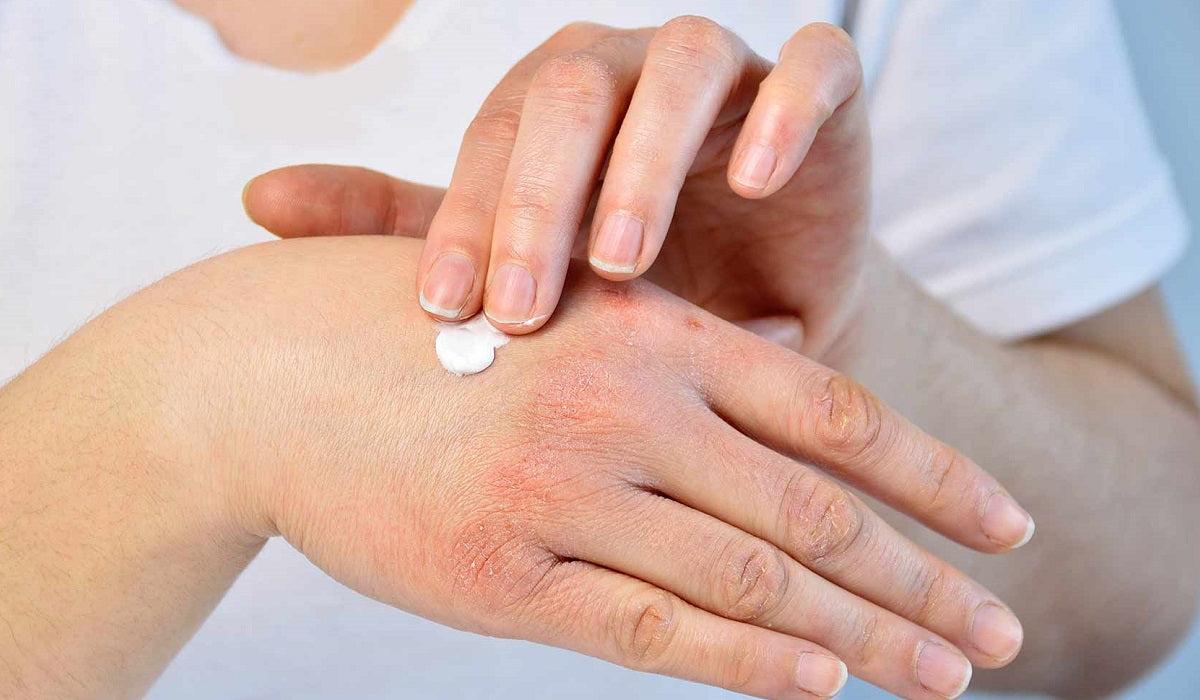 ízületi gyulladásos pikkelysömör kezelése a hasi vörös foltok megjelenésének oka